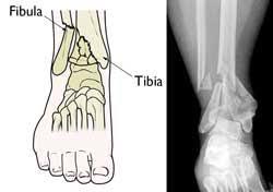 Tibial Fibular Fractures