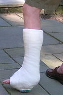 A Personal Injury Attorney's Advice on Your Broken Leg