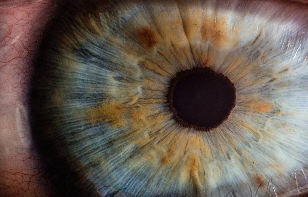 Iris Sphincter Tear Treatment
