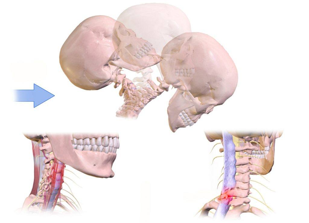 What Is A Cervical Sprain