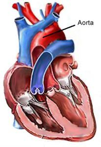 Aortic Ruptures with Traumatic Accidents