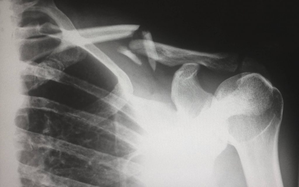 Humerus Fractures: Avascular Necrosis can be Serious