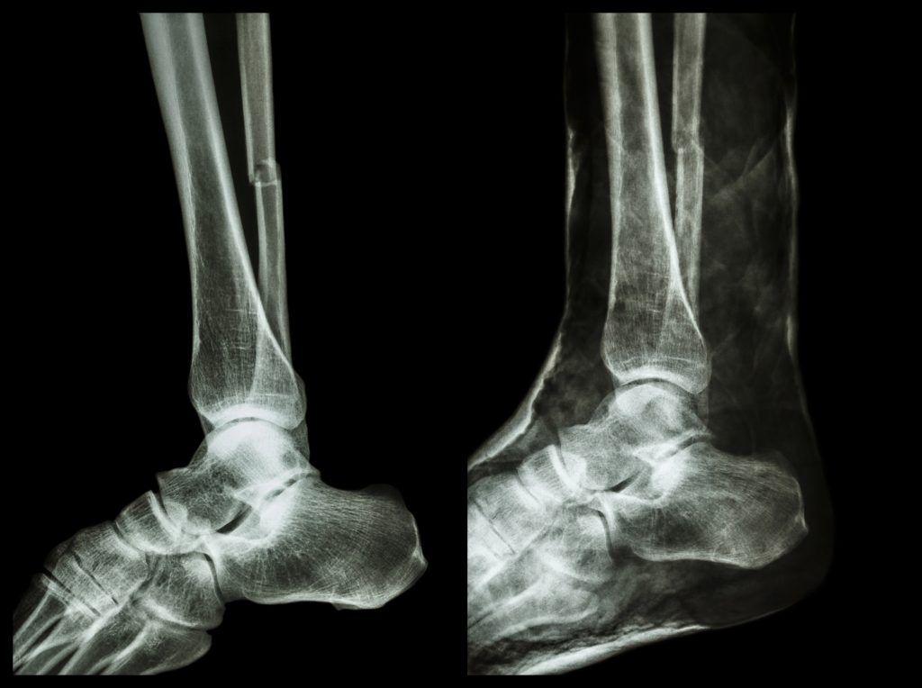 fibula fracture, broken fibula