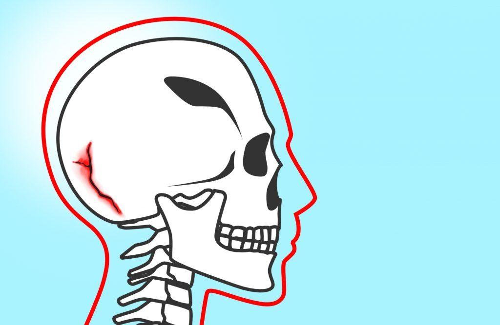Basal Skull Fracture