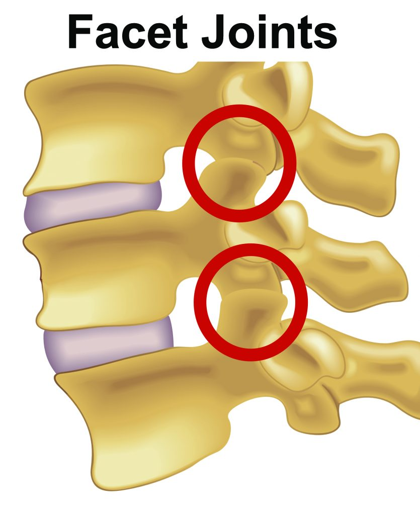 Facet Joint Injury