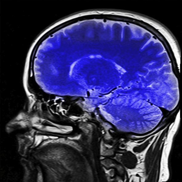 Functional Loss Associated with Brain injuries