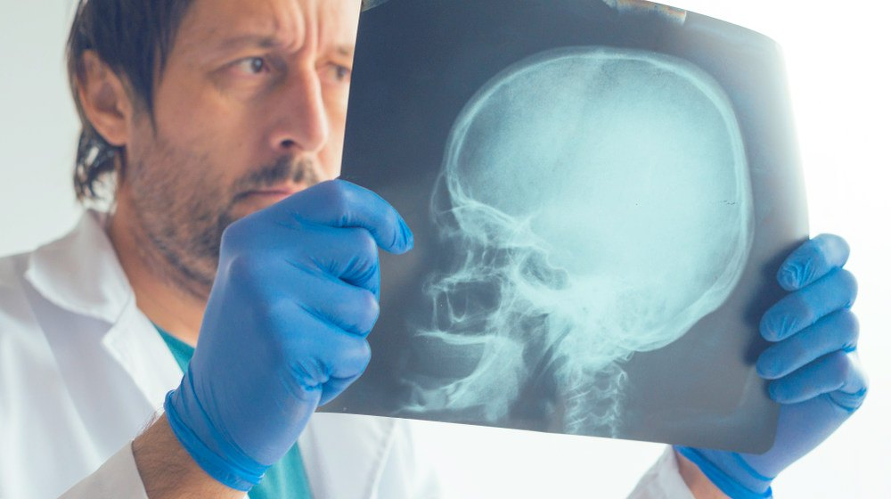 Feature | Fractured Skull: Symptoms and Causes | Personal Injury Lawyer