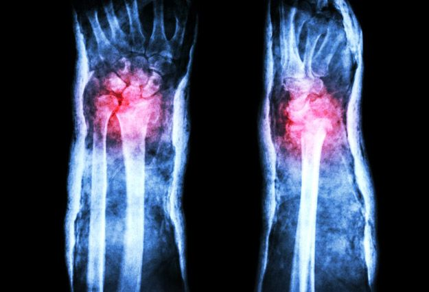 Some Patients Will Require Surgery | Colles Fracture: Causes, Symptoms, and Diagnosis