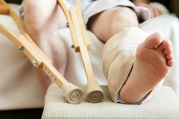 Arthritis from Hardware Following a Femur Fracture