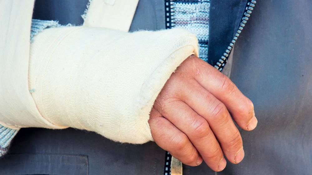 Colles Fracture: Causes, Symptoms, and Diagnosis