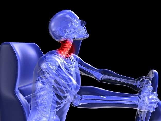Whiplash Facet Joint Injury | Facet Joint Injury | Facet Joint Injury