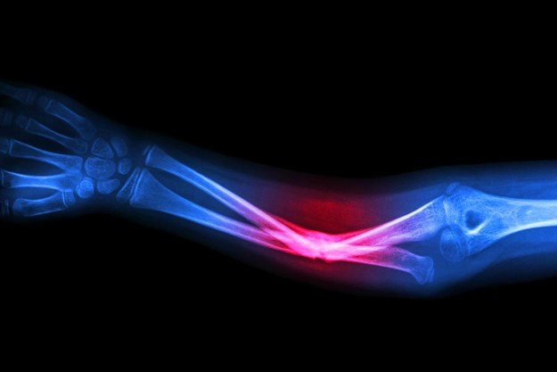 Treatment of an Open Fracture   Open Fracture Treatments   Personal Injury Lawyer