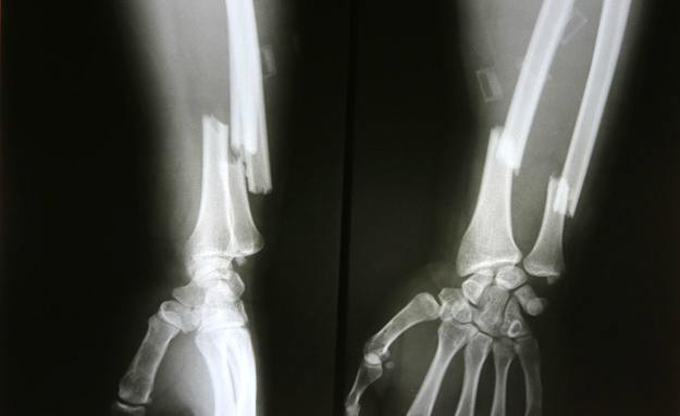 Classification of Radial and Ulnar Fractures | Radius and Ulna Shaft Fractures Causes and Treatments
