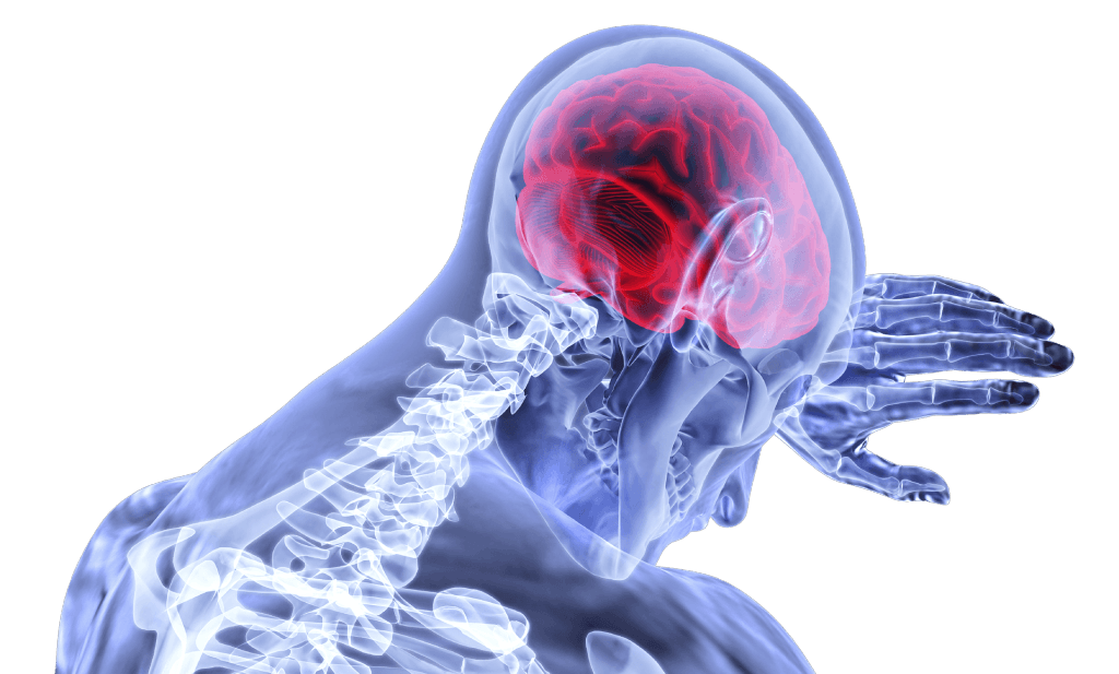 Rocklin Brain Injury Lawyer