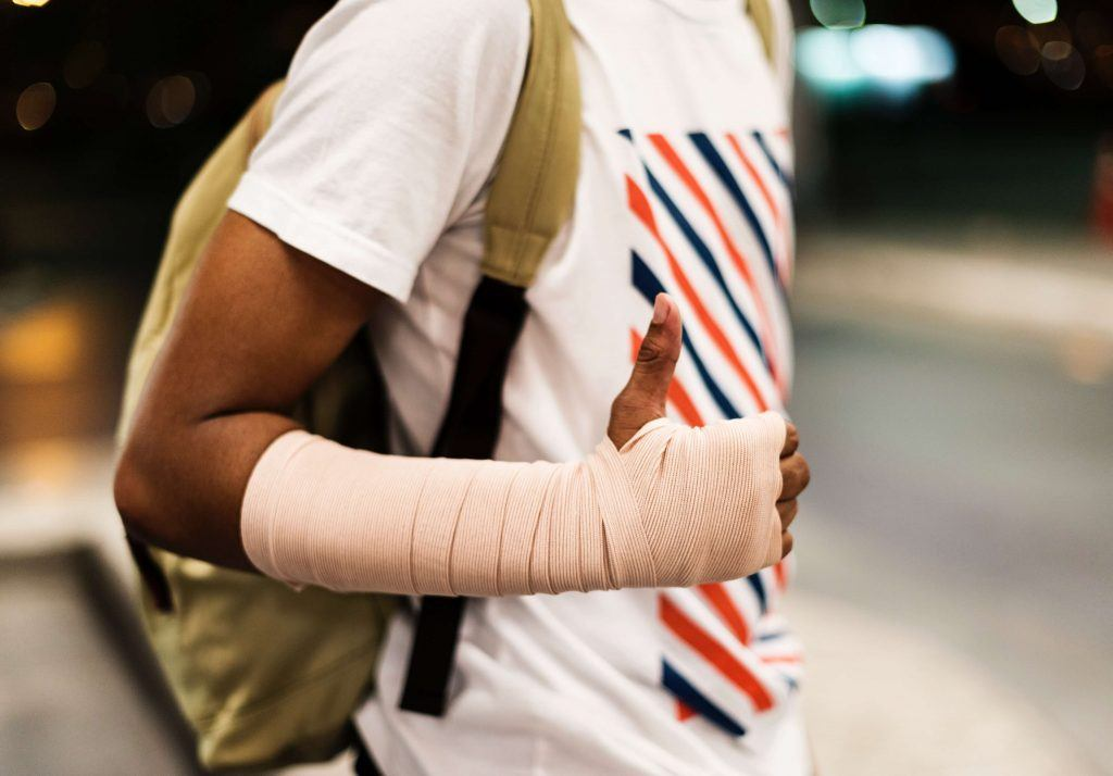 Compound Bone Fractures in an Auto Accident