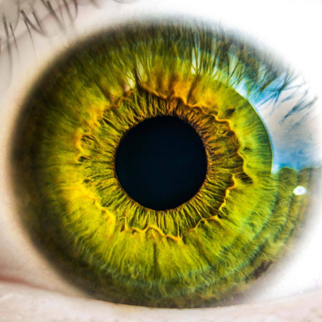Vision Changes After an Auto Accident