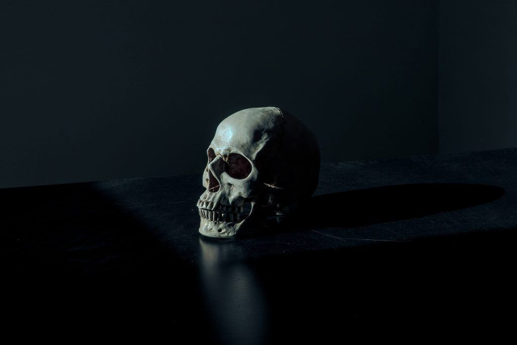 What is a Comminuted Skull Fracture?