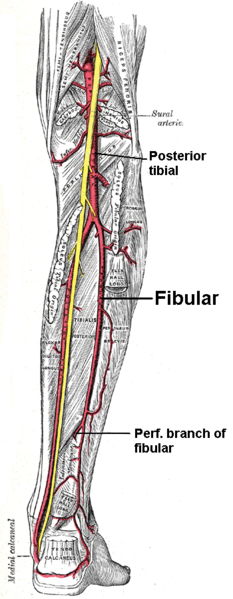 Car Accident Tibia Fractures