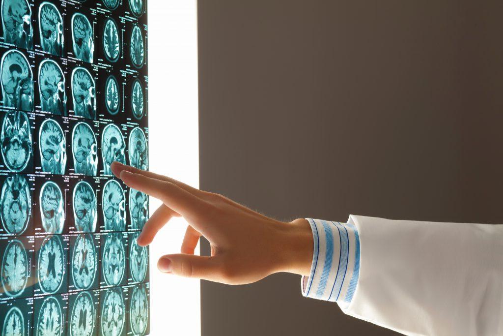 Mechanisms of a Traumatic Brain Injury