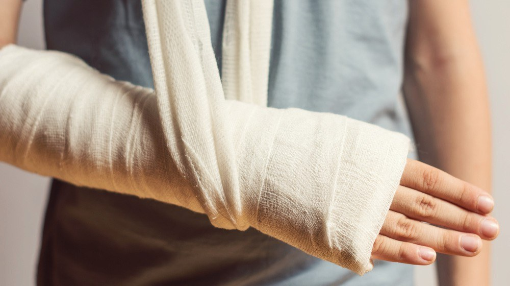 What is the Treatment of a Broken Ulna?