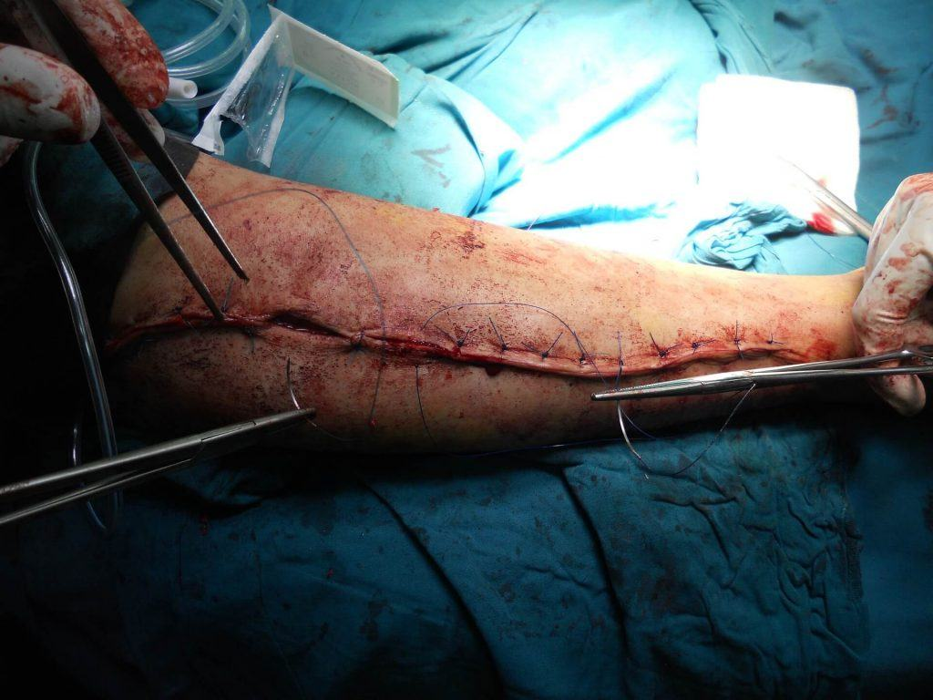 Humerus Fracture Surgery