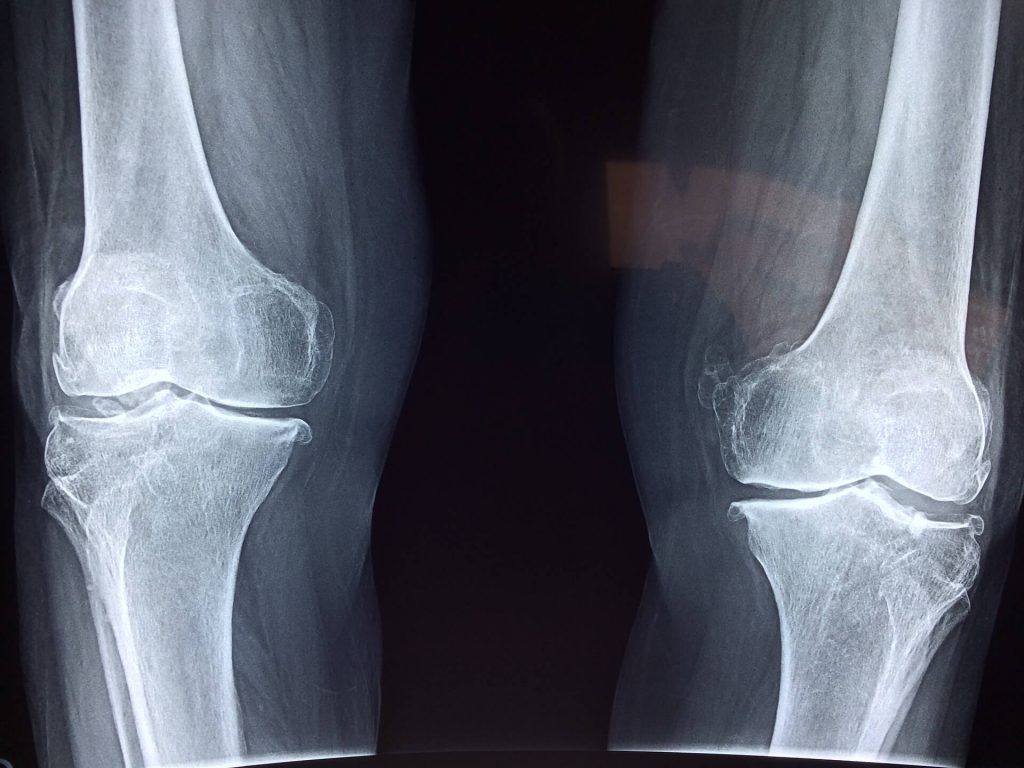 What is an Intra-Articular Femur Fracture?