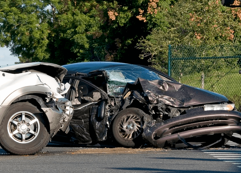Olecranon Fracture in an Auto Accident