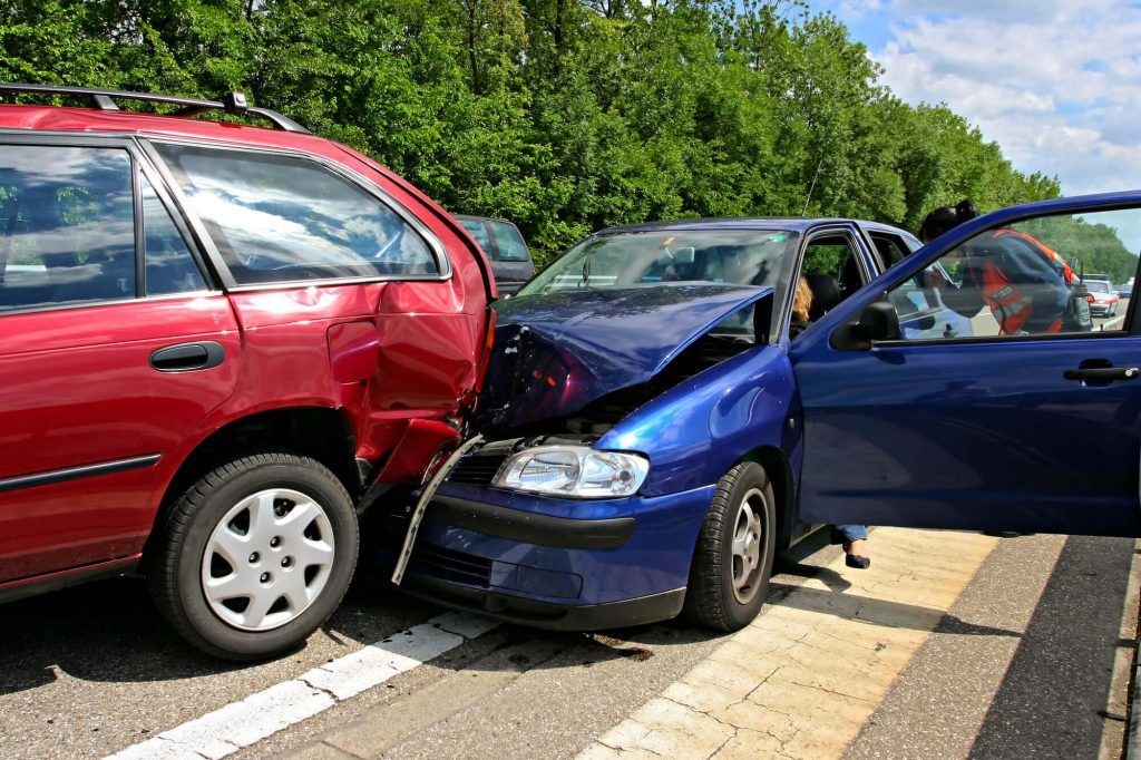 Maxillary Fracture in an Auto Accident