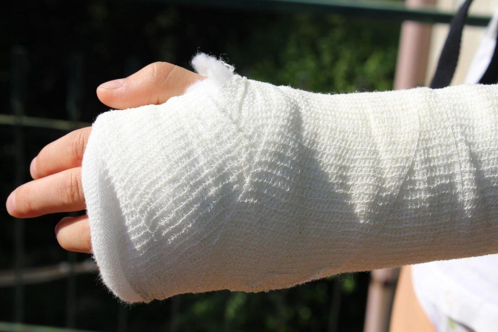 What is the Recovery Time for a Midshaft Ulna Fracture