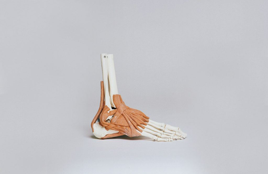 What is a Lisfranc Fracture