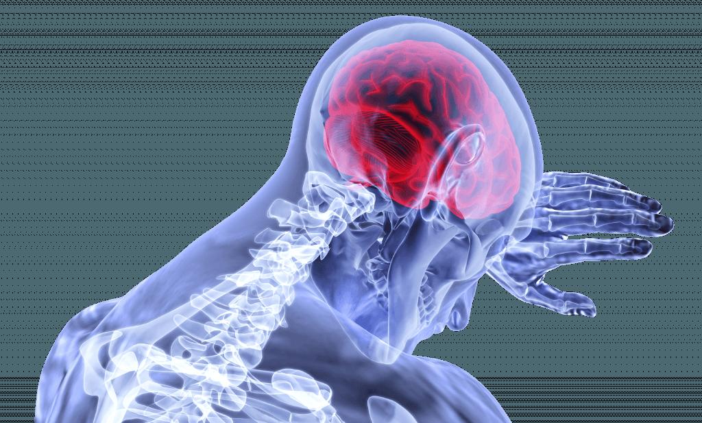 Brain Injury Animation Explains Its Impacts