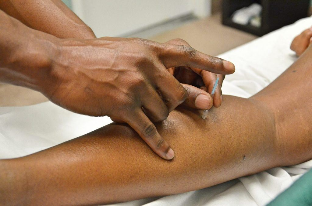 Acupuncture Beats Injected Morphine for Pain