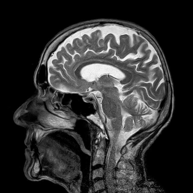 A Concussion Can Increase the Risk of Multiple Sclerosis