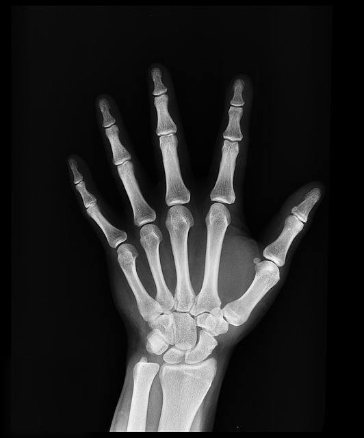 What is a Rolando Fracture?