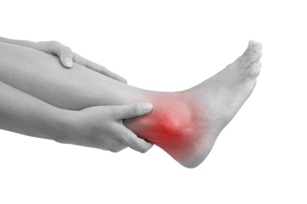 Ankle Capsulitis