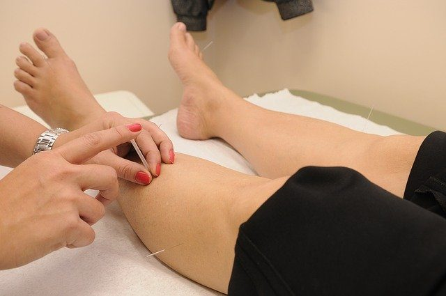 Acupuncture Therapy Can Help Someone Recover from Femur Fracture Surgery