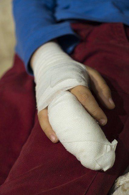 New Bone Bandage Promotes Fracture Healing