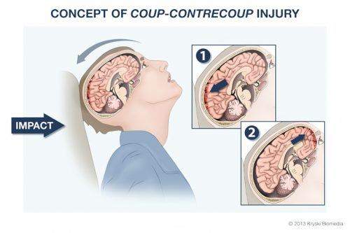 Coup Contrecoup Injuries