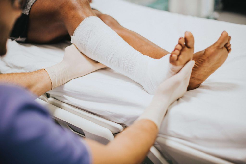 Impaction Fractures of Lower Tibia