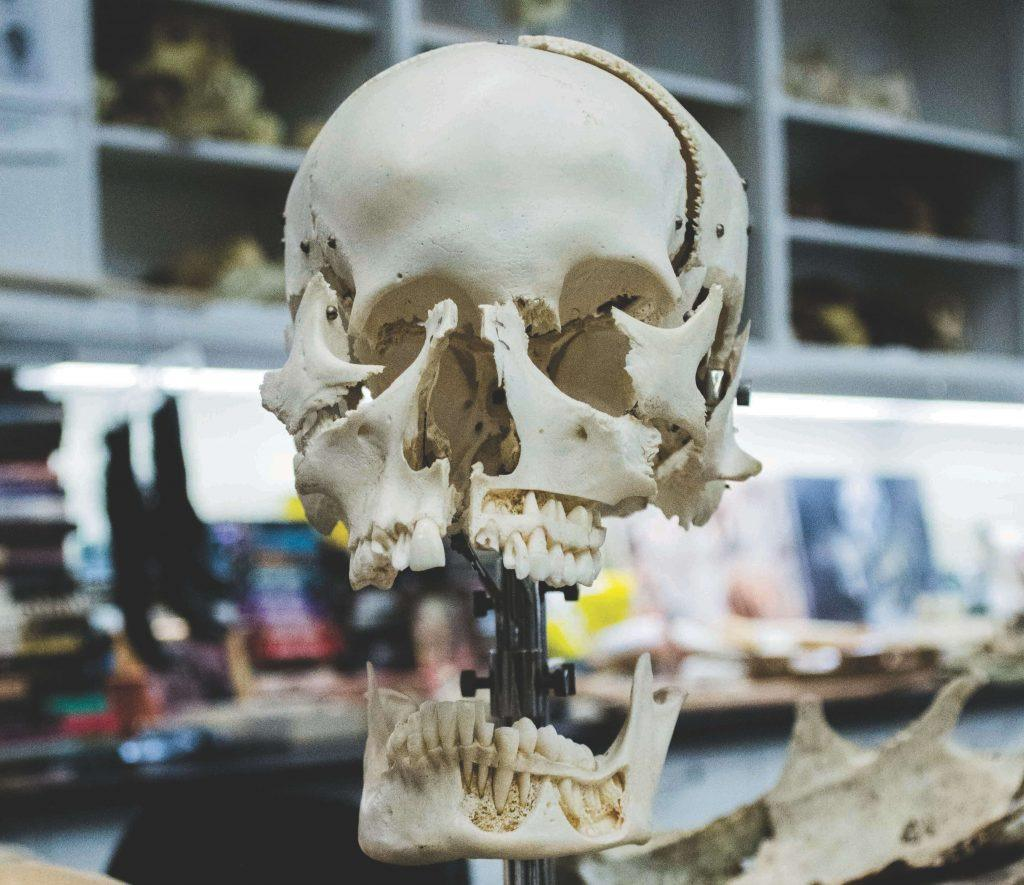 Jaw fracture Lawyer