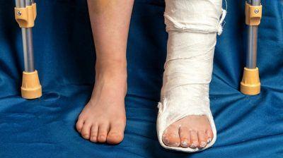 Broken Heel Following an Accident