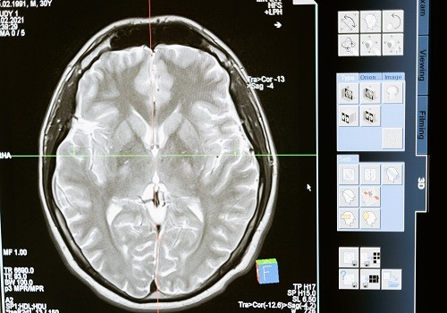 Brain Injury in Females Show More Long-Term Symptoms